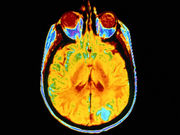 Research Offers Clues to Dementia With Language Loss