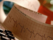 Widely Used Heart Drug Tied to Dementia Risk