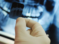teeth-x-ray-root-canal