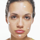 acne-stronger-products