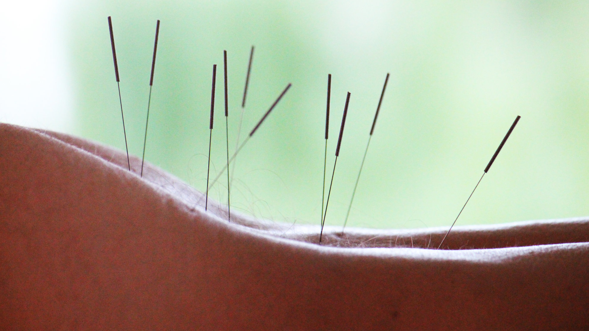 acupuncture-back-needles