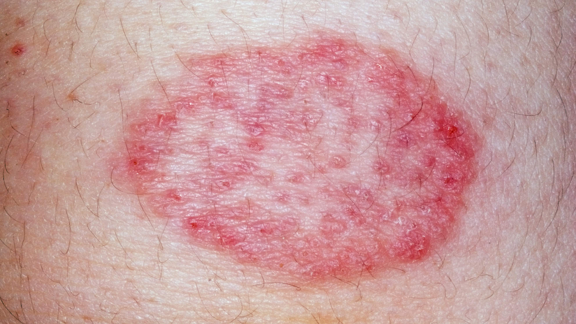 skin-condition-ringworm