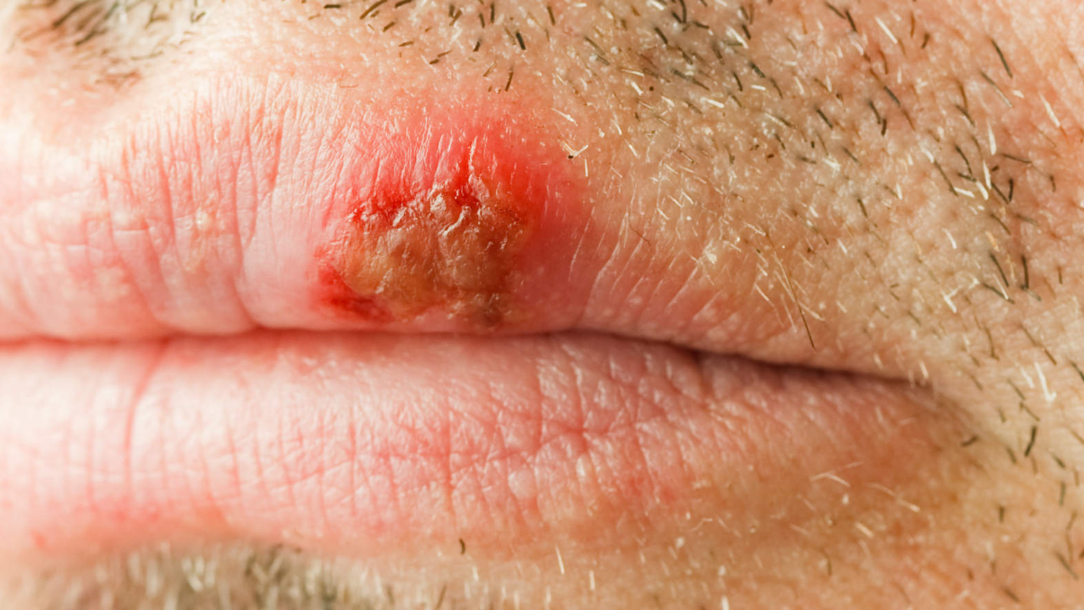 skin-condition-herpes
