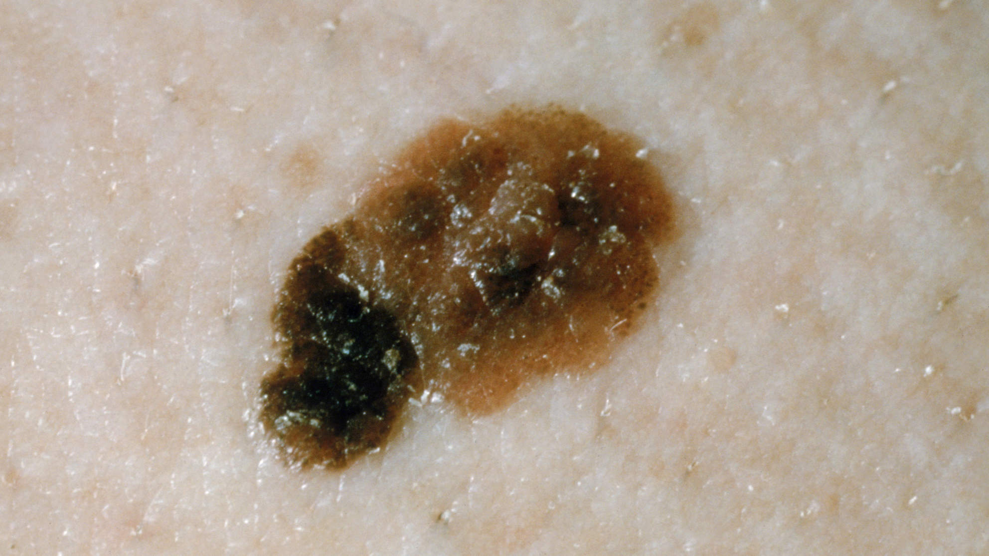 skin-cancer-skin-condition