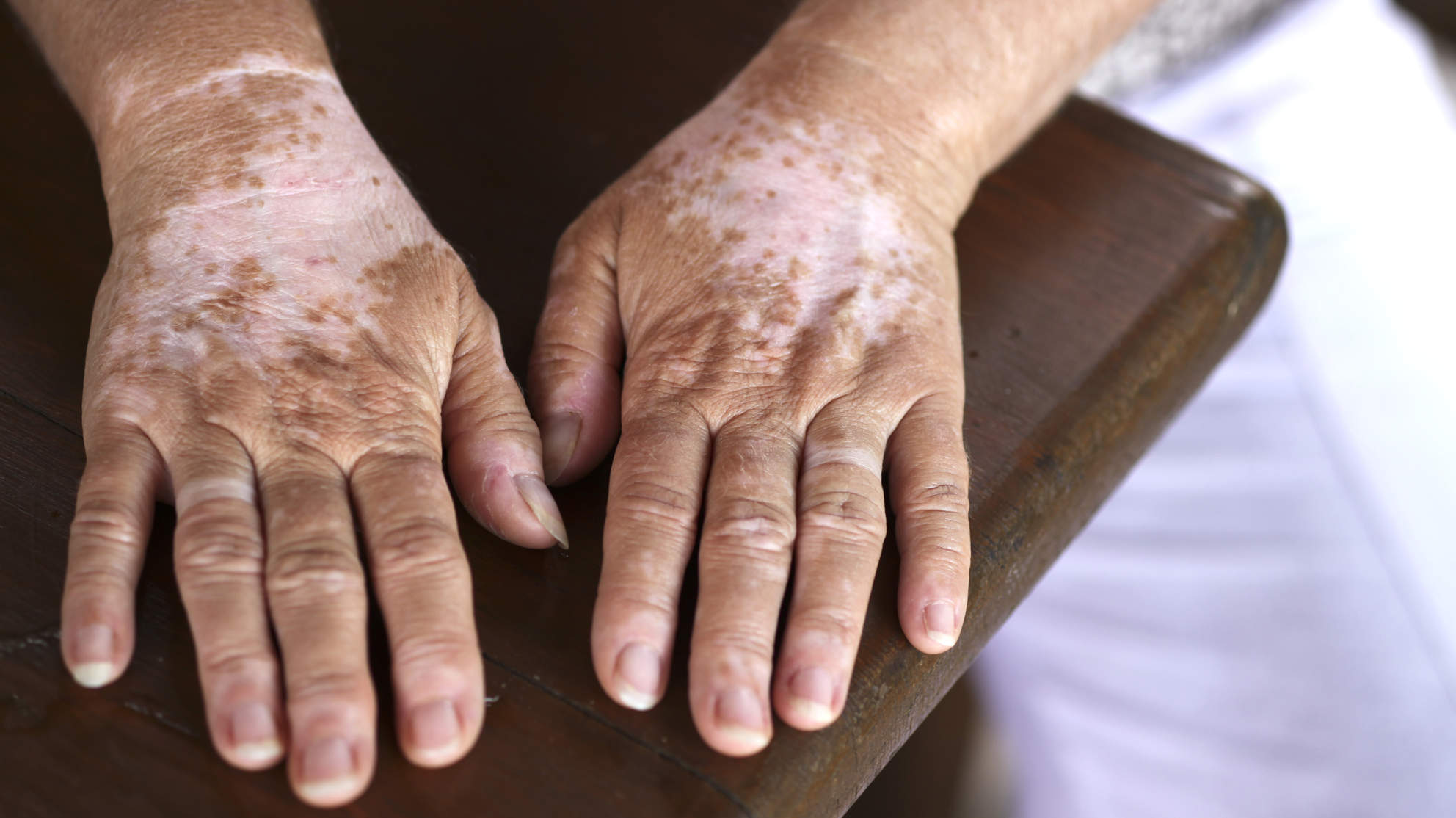 skin-condition-vitiligo