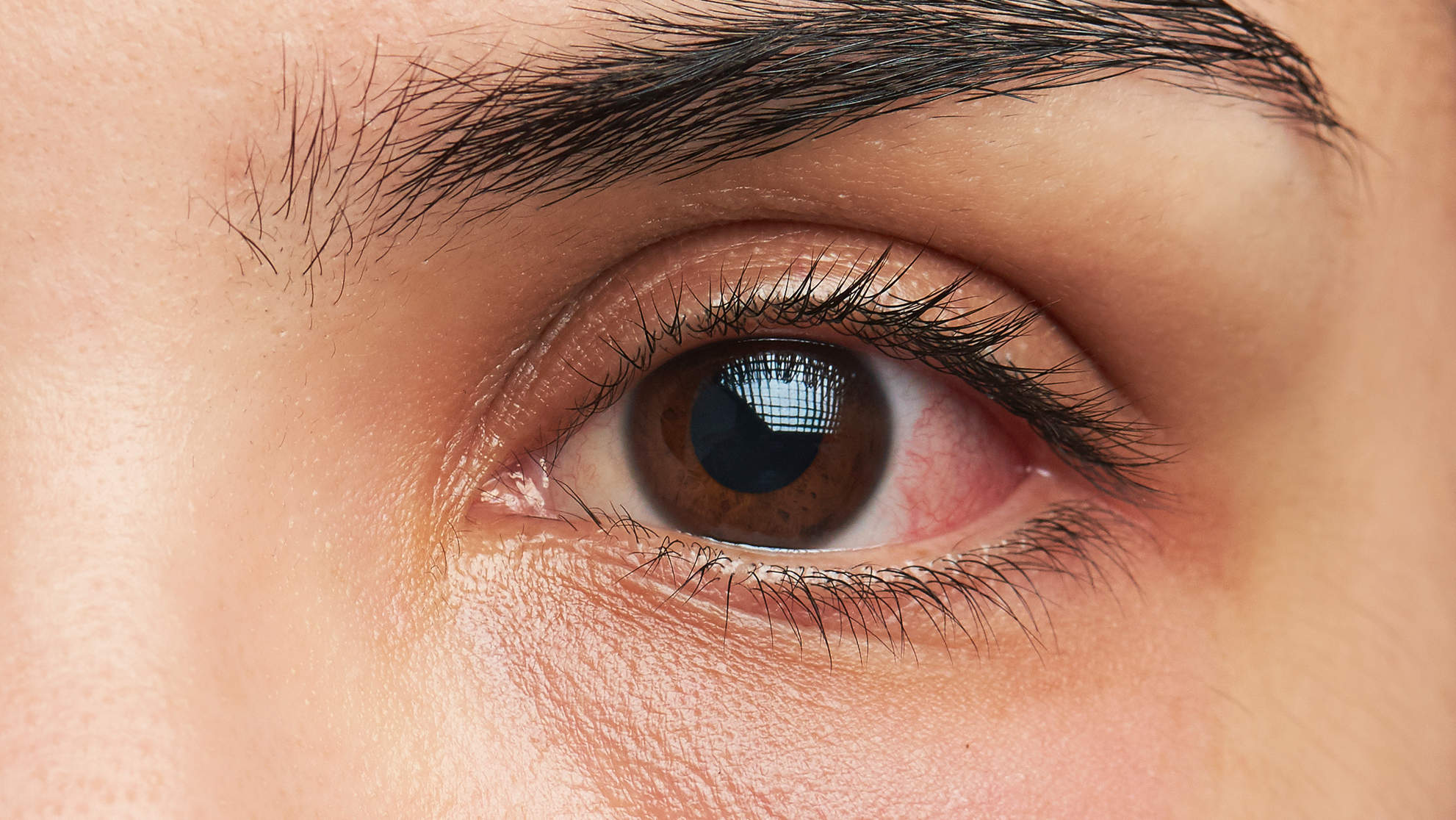 pink-eye-close-up-infection