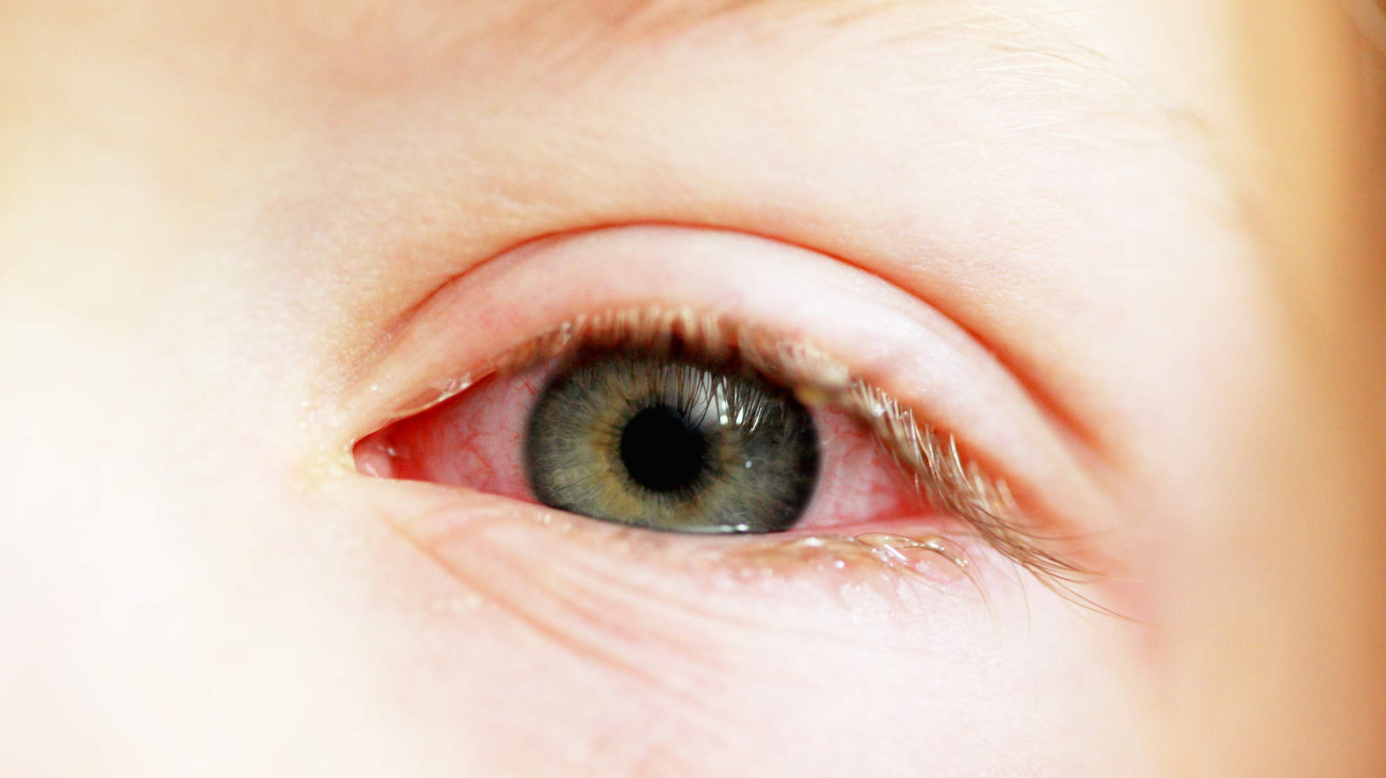 pink-eye-child-closeup
