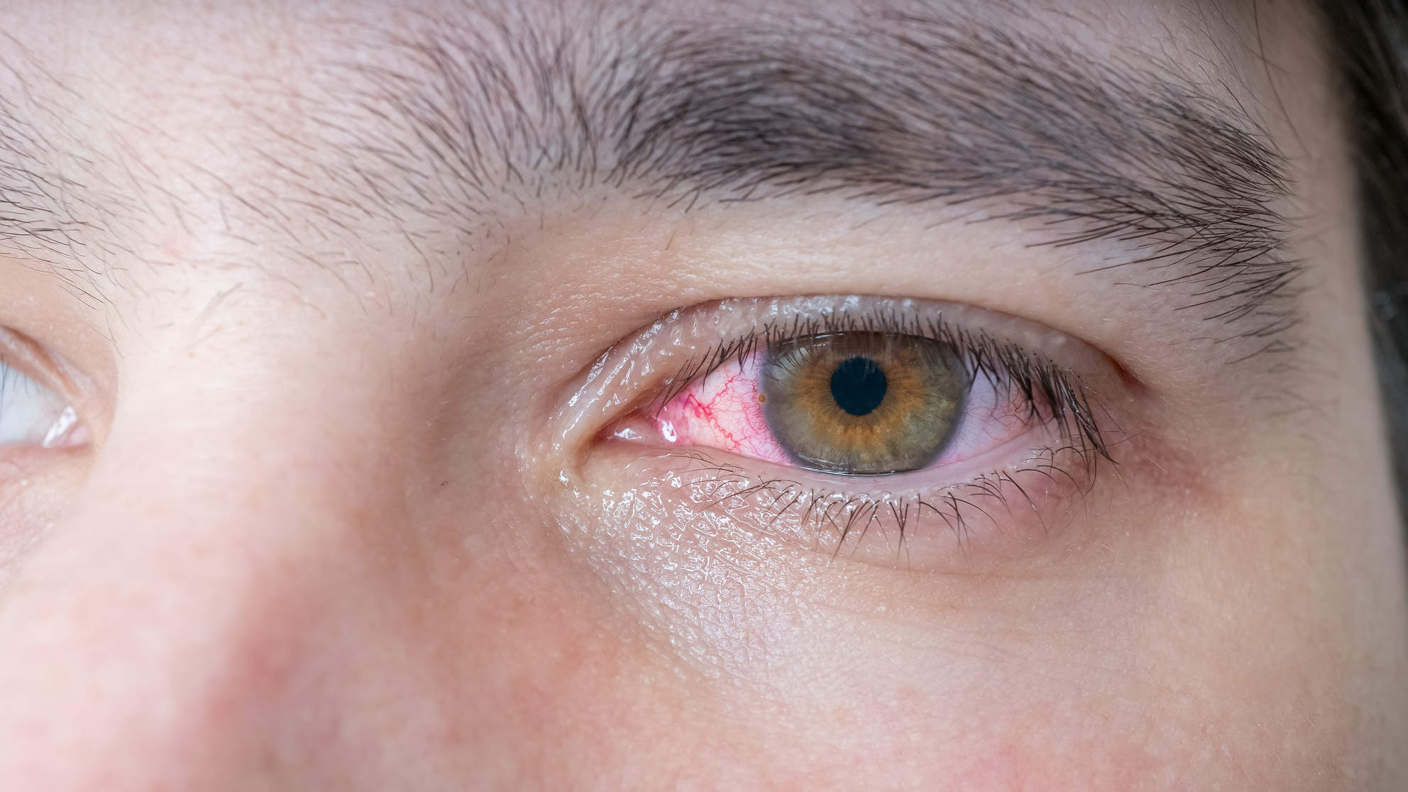 pink-eye-condition-closeup-man