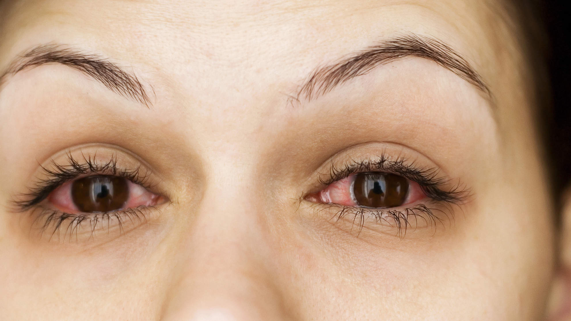Pink eye allergies conjunctivitis viral bacterial