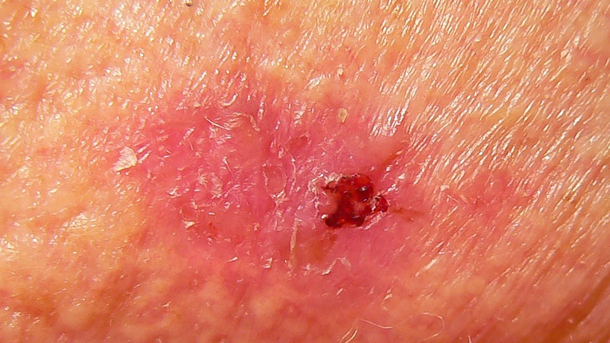 09-scaly-skin-cancer
