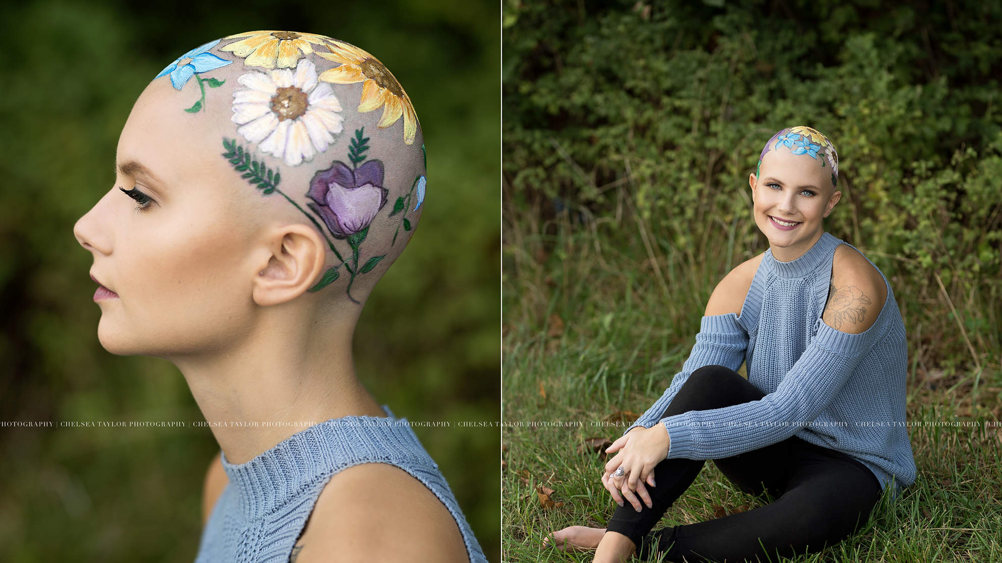 Teen Uses Senior Portraits to Embrace Her Alopecia: 'Losing My Hair Has Boosted My Confidence'