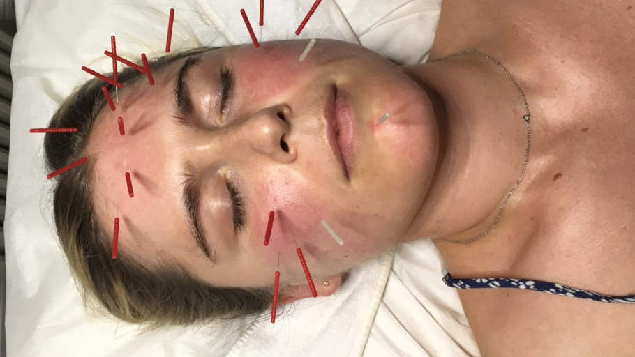 I Tried Acupuncture for Better Skin—and It Completely