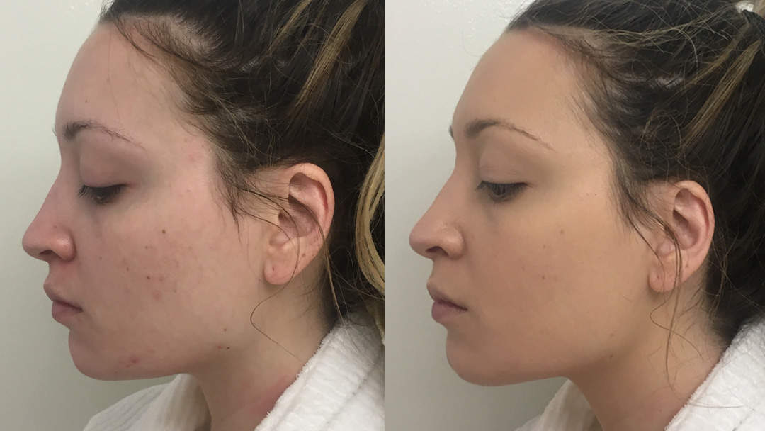 The Best Foundations To Cover Acne Scars That Look Natural Health