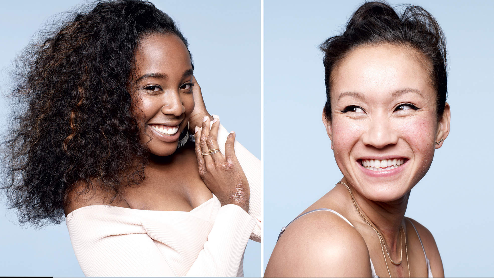 Dove's New 'Make Peace With Dry Skin' Campaign Features Real Women With Eczema, Psoriasis, and Other Skin Conditions