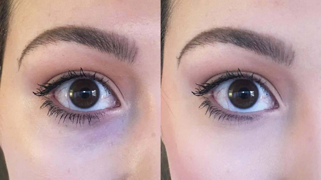 I Tried Kim Kardashian's Trick for Making Dark Under Eye Circles Disappear