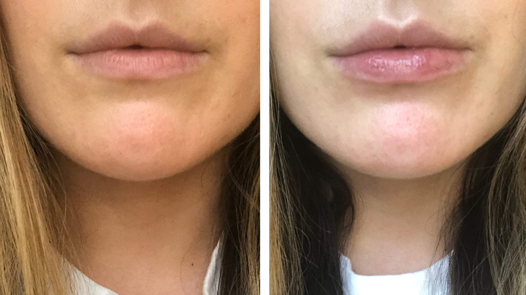 I'm Obsessed With This Lip Plumper That Made My Lips Look Fuller Than Ever