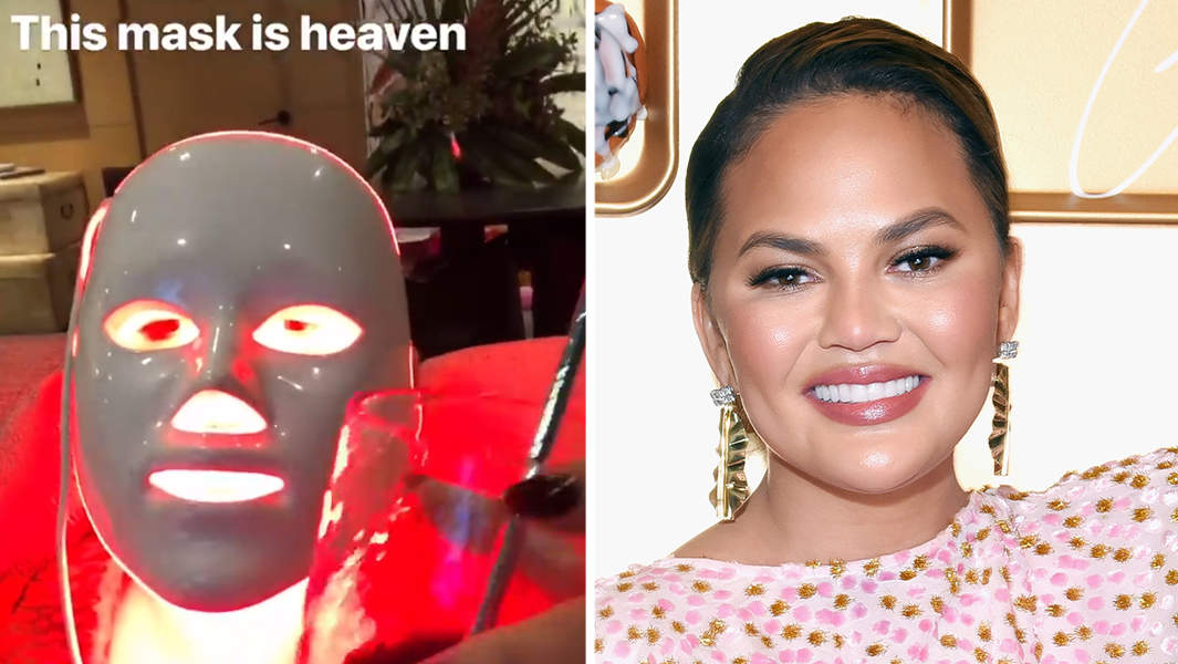Chrissy Teigen Loves This LED Acne Mask—Here's a $30 Dupe You Can Use at Home