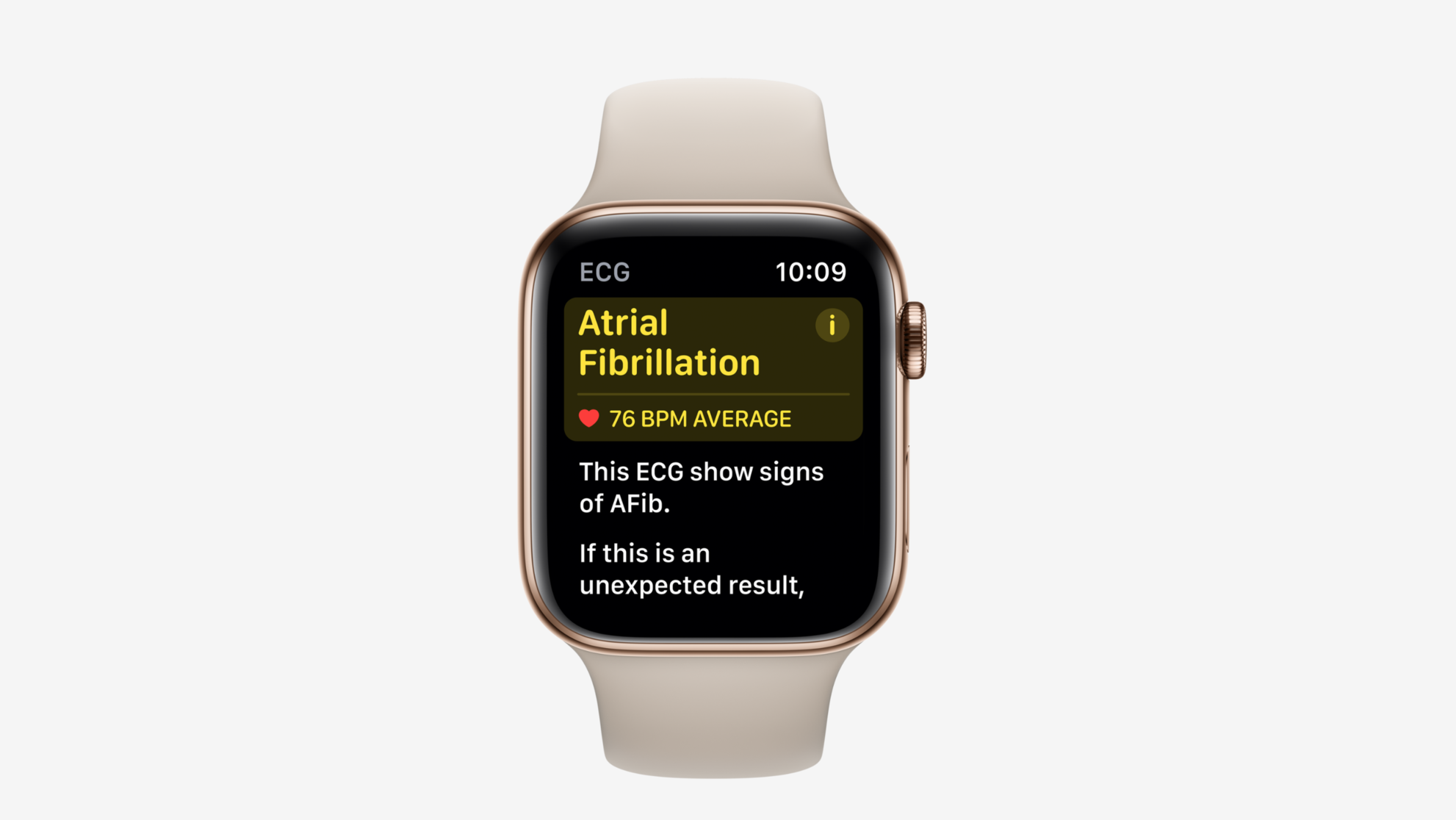 The Apple Watch's new ECG feature is already saving lives