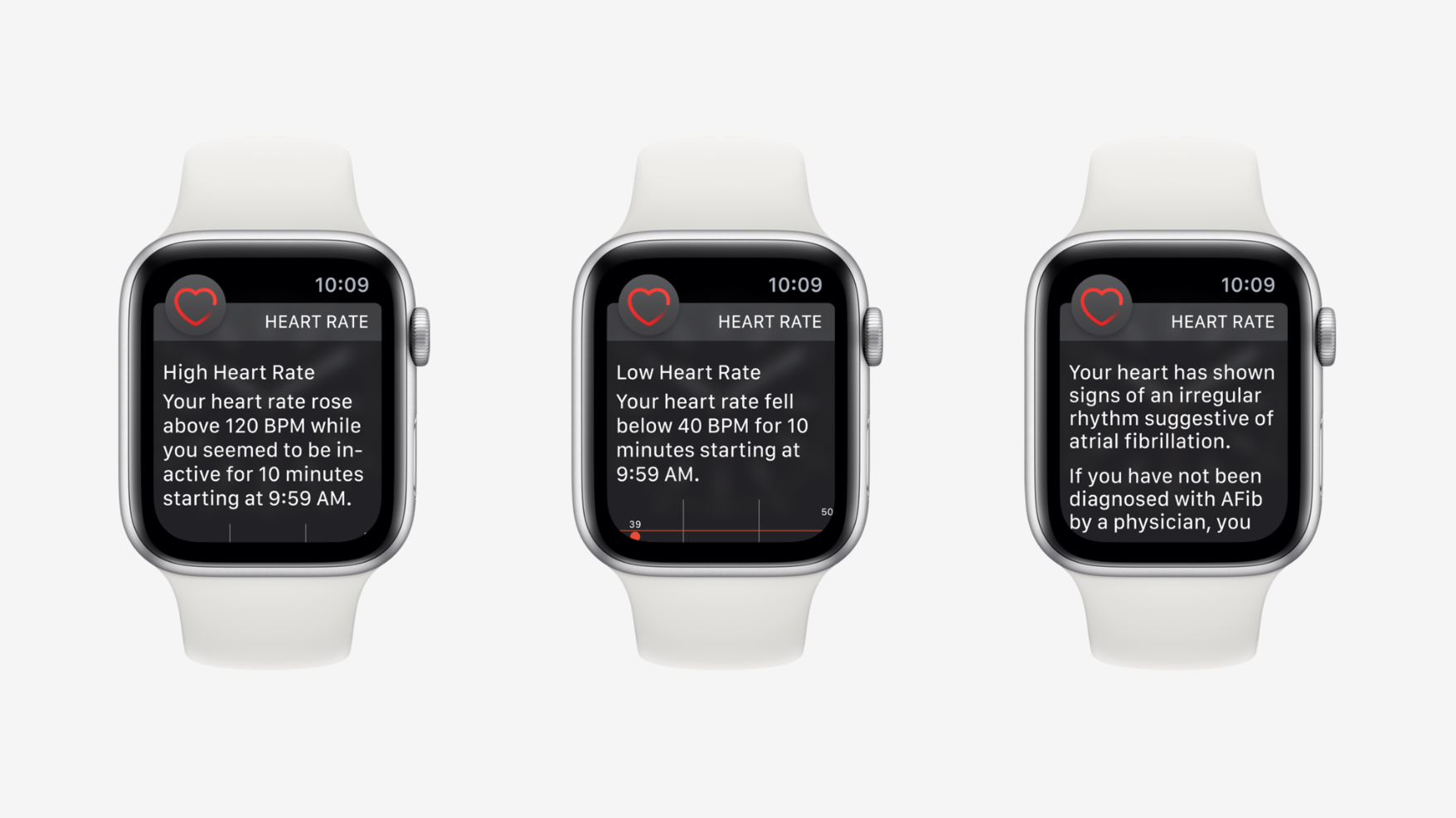 apple-watch-afib-2