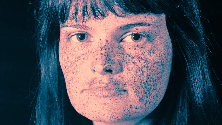 This Photographer's Viral Ultraviolet Portraits Show the Terrifying Effects of Sun Damage