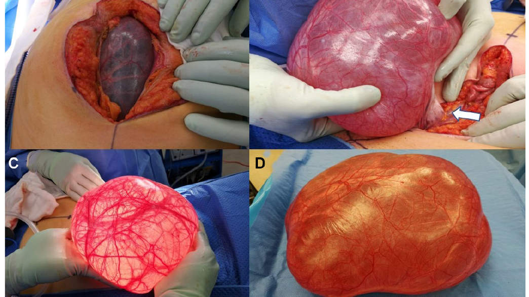 giant-abdominal-cyst-1