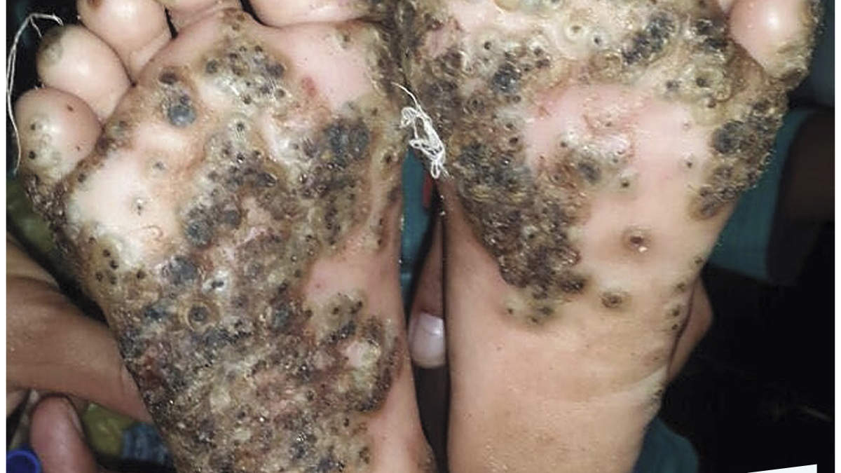 This 10-Year-Old's Feet Were Covered in Green and Black Lesions After Insects Infested Her Skin