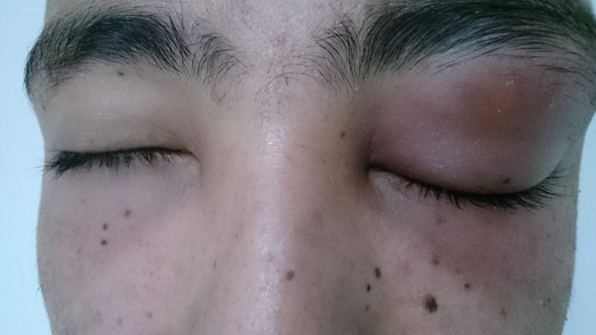 eye swollen infection pink eye cellulitis periorbital preseptal