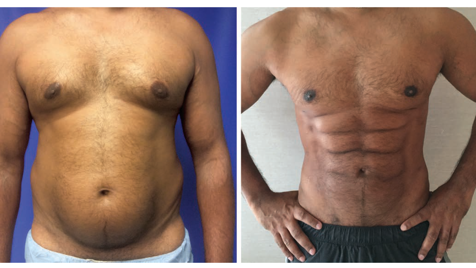 This Plastic Surgery Procedure That Promises to Give You Six-Pack Abs Is Ridiculous