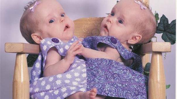 twins cojoined surgery woman women health wellbeing birth motherhood