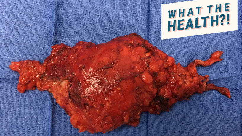 This 58-Year-Old Woman Had a Huge Tailgut Cyst Removed Because of a Decades-Old Health Problem