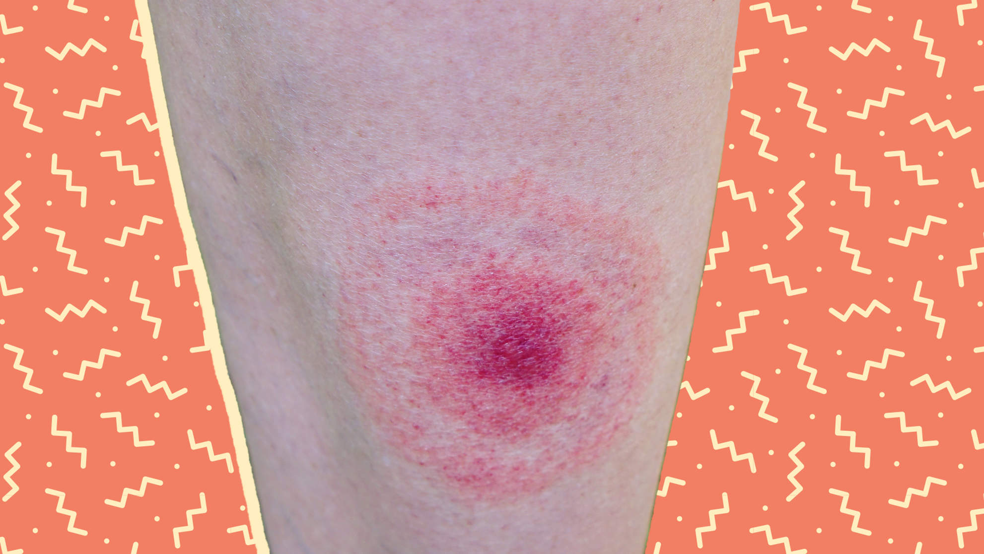 What Does a Tick Bite Look Like?