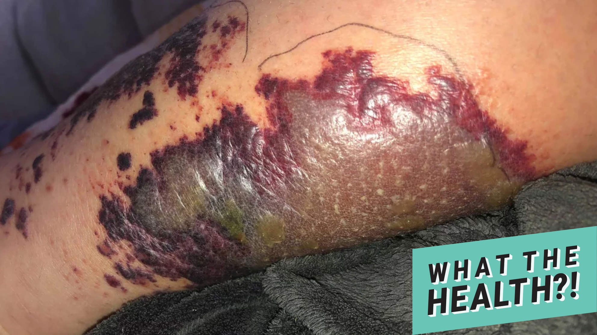 A Hot Tub Infection Caused A 26-Year-Old Woman to Almost Lose Her Leg