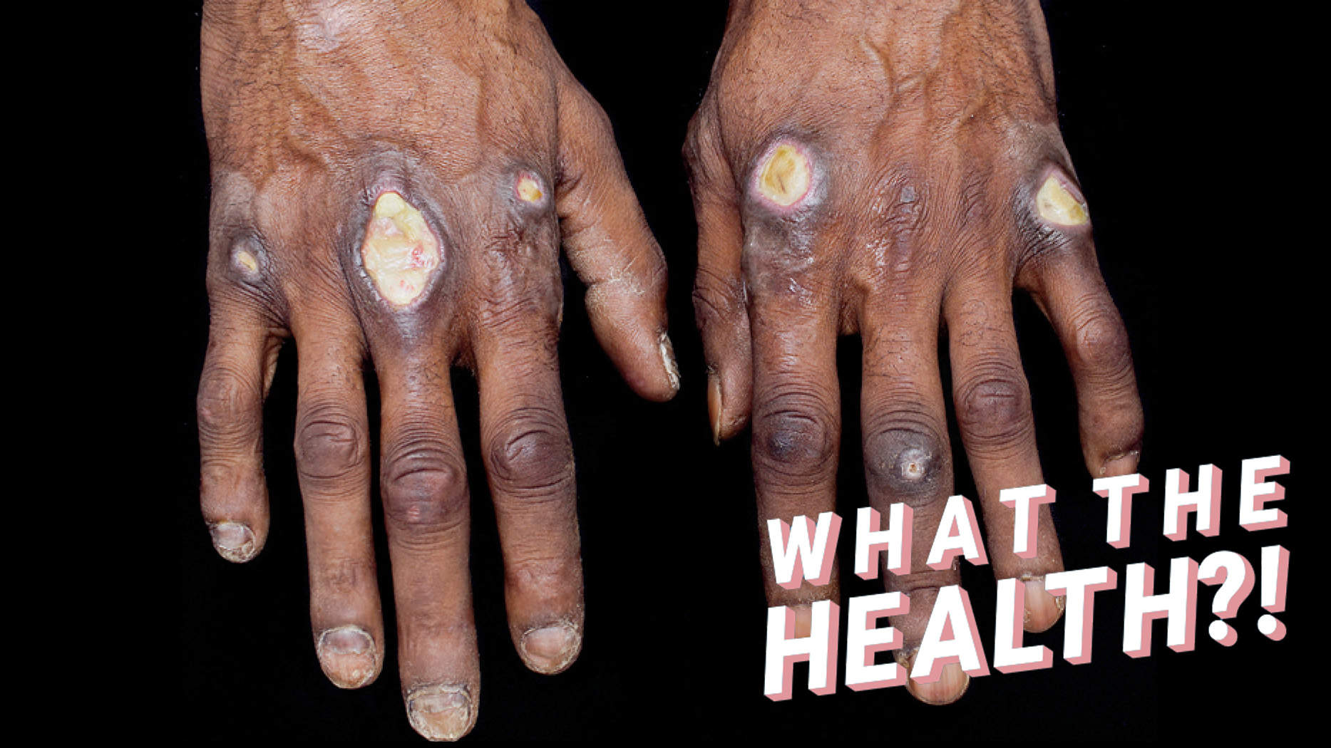 The Large, Painful Sores on This Man's Hands Were Caused By An Extremely Rare Inflammatory Disease