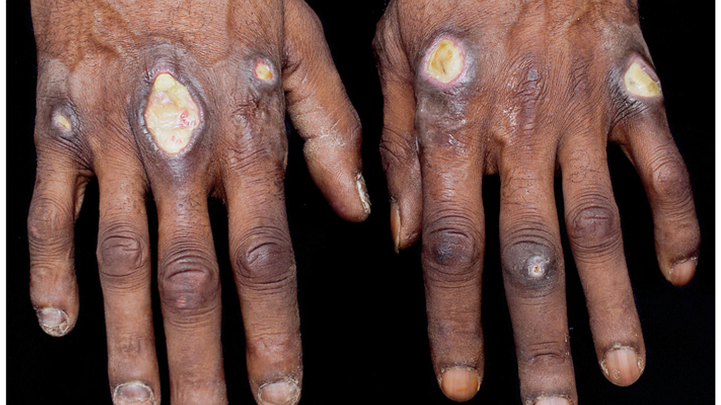 Cutaneous Ulcerations in Anti-MDA5 Dermatomyositis dermatology health hands ulcers