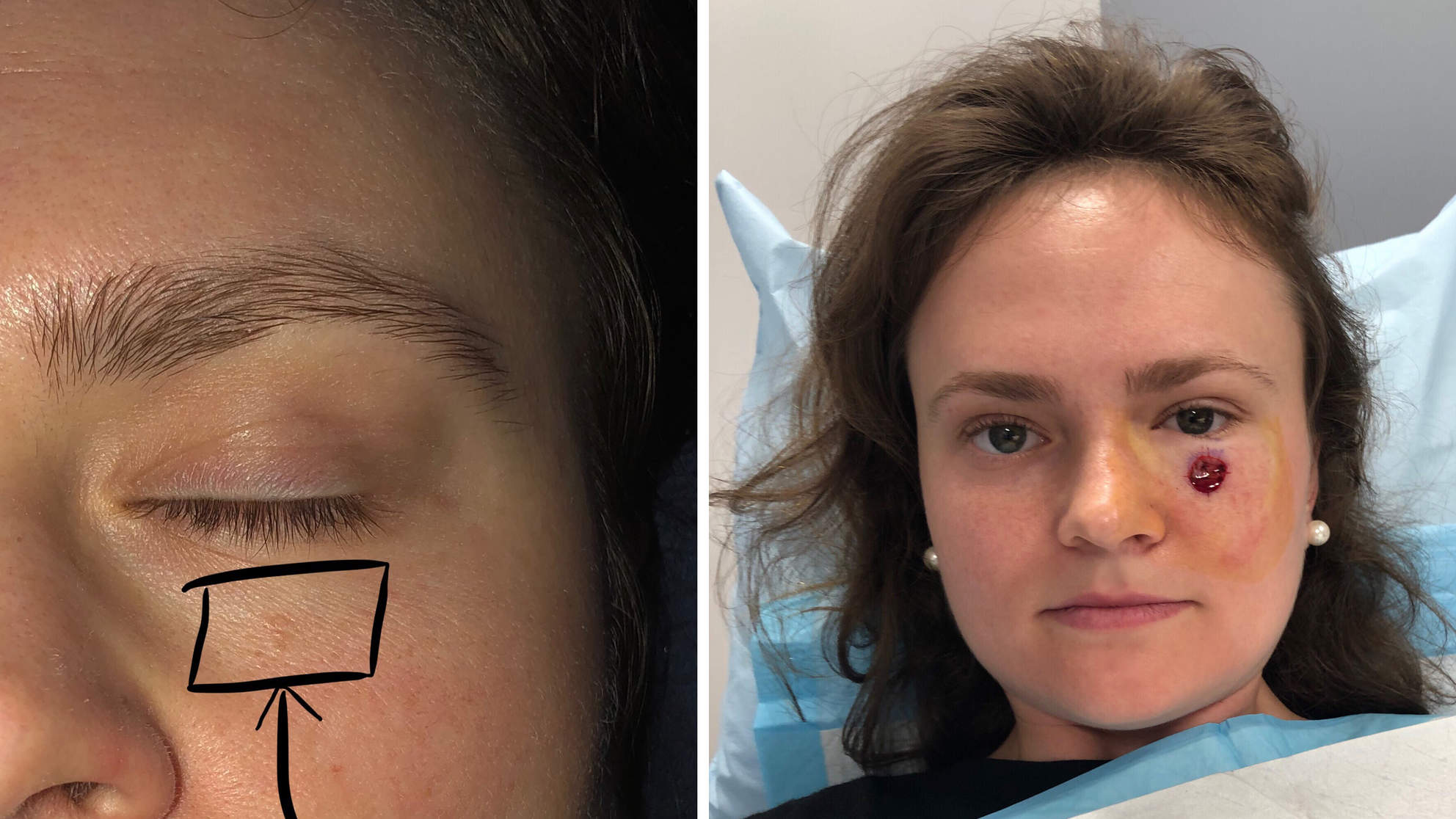 This 24-Year-Old Thought the Tiny Spot Under Her Eye Was a Pimple. It Turned Out to Be Skin Cancer
