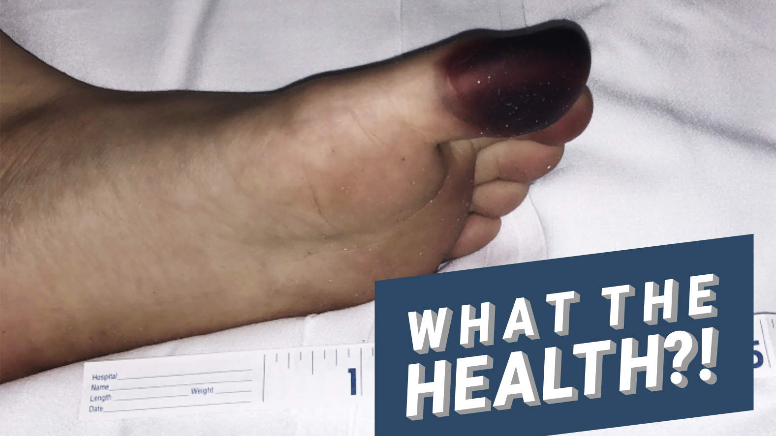 This Girl's Toe Turned Purple from Millipede Staining—Here's What That Means