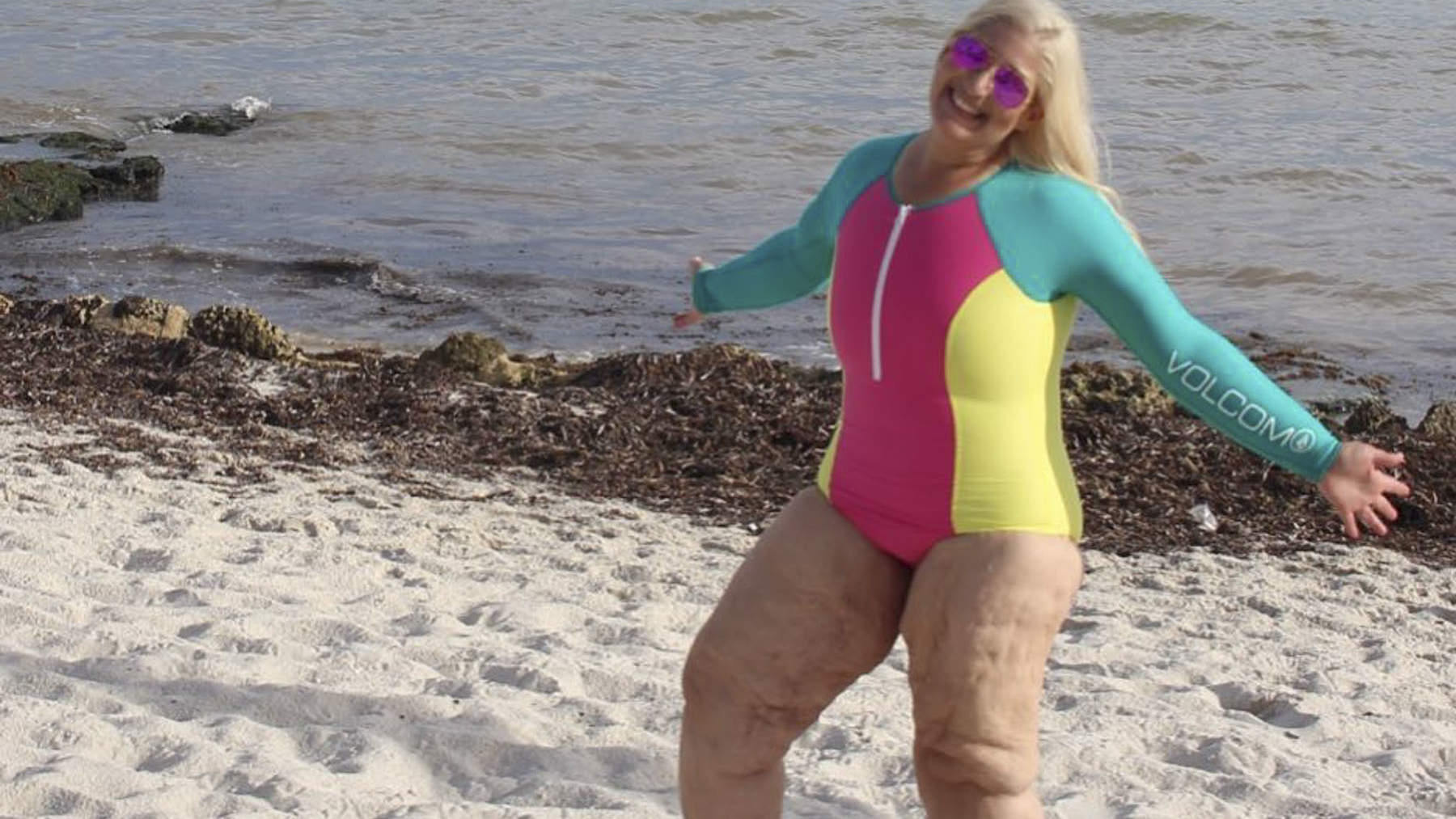 Woman Who Lost 350 Lbs. Body Shamed on the Beach Again—Even After Skin Removal Surgery