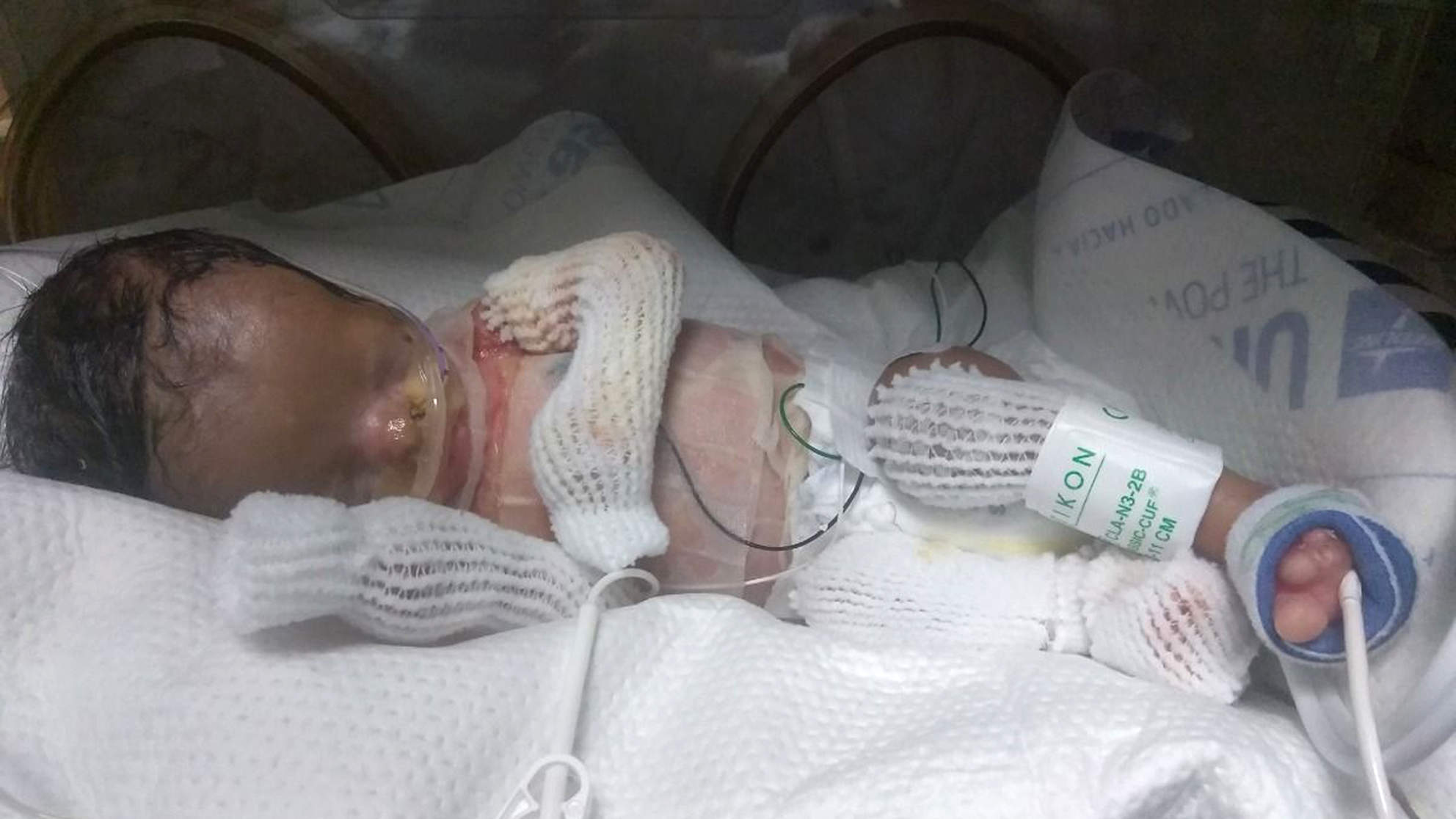 baby born without skin