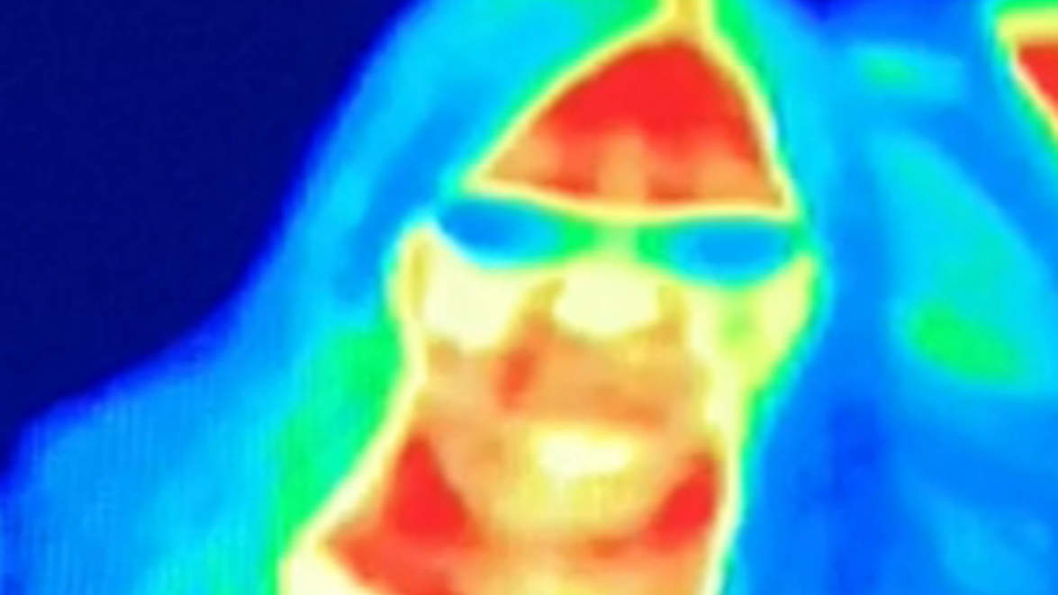 thermal image helps woman detect breast cancer