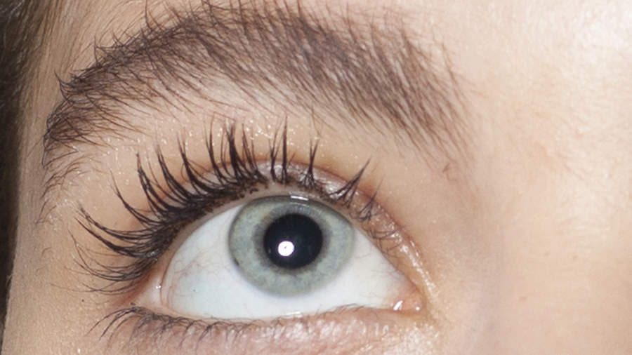 A woman found 100 mites living in her eyelashes after not washing her pillowcase for five years