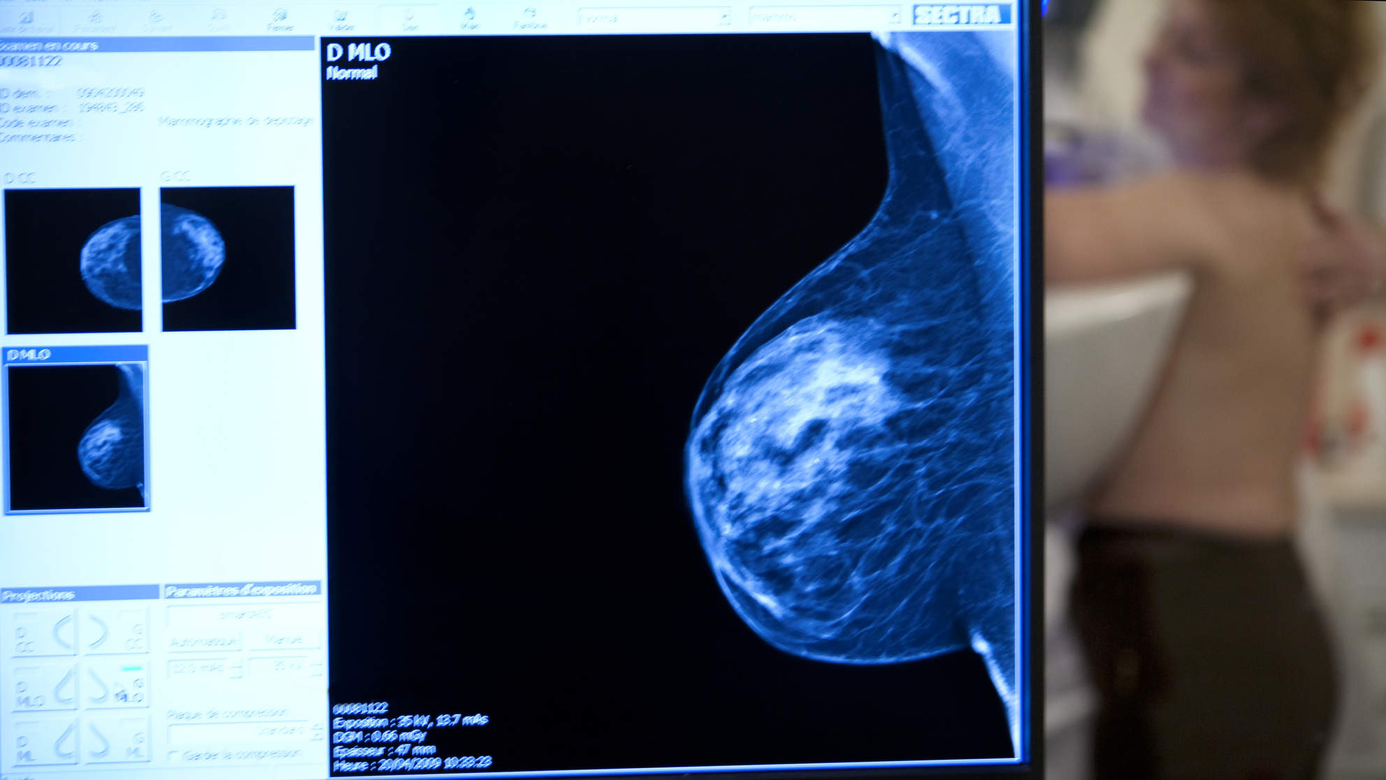 More Women With Breast Cancer May Soon Be Skipping Chemo. Here's Why