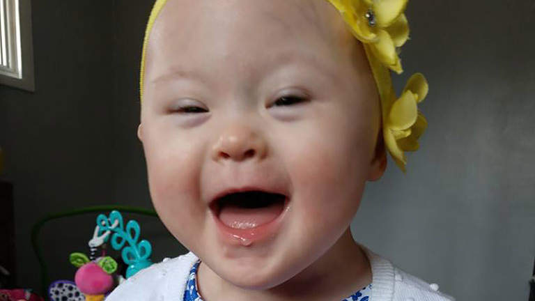 Ohio Toddler with Down Syndrome Beats Aggressive Cancer Twice—All Before Turning 2