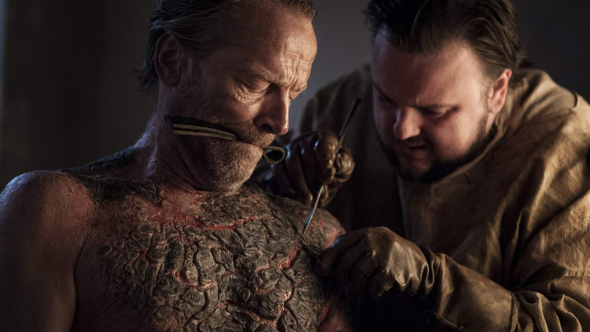 The Real History Behind That Gruesome Greyscale Treatment on Game of Thrones