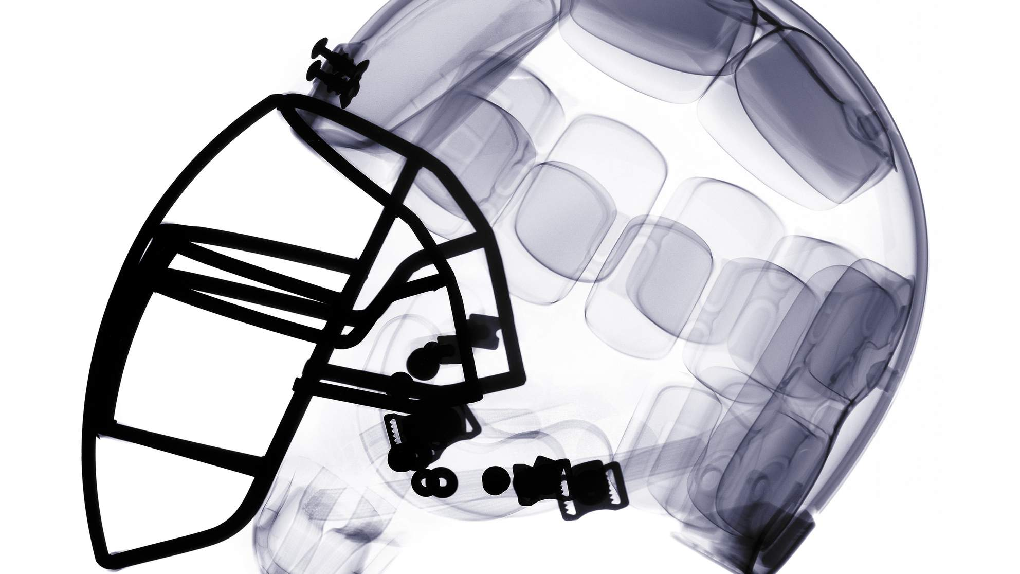 X-ray of american football helmet.