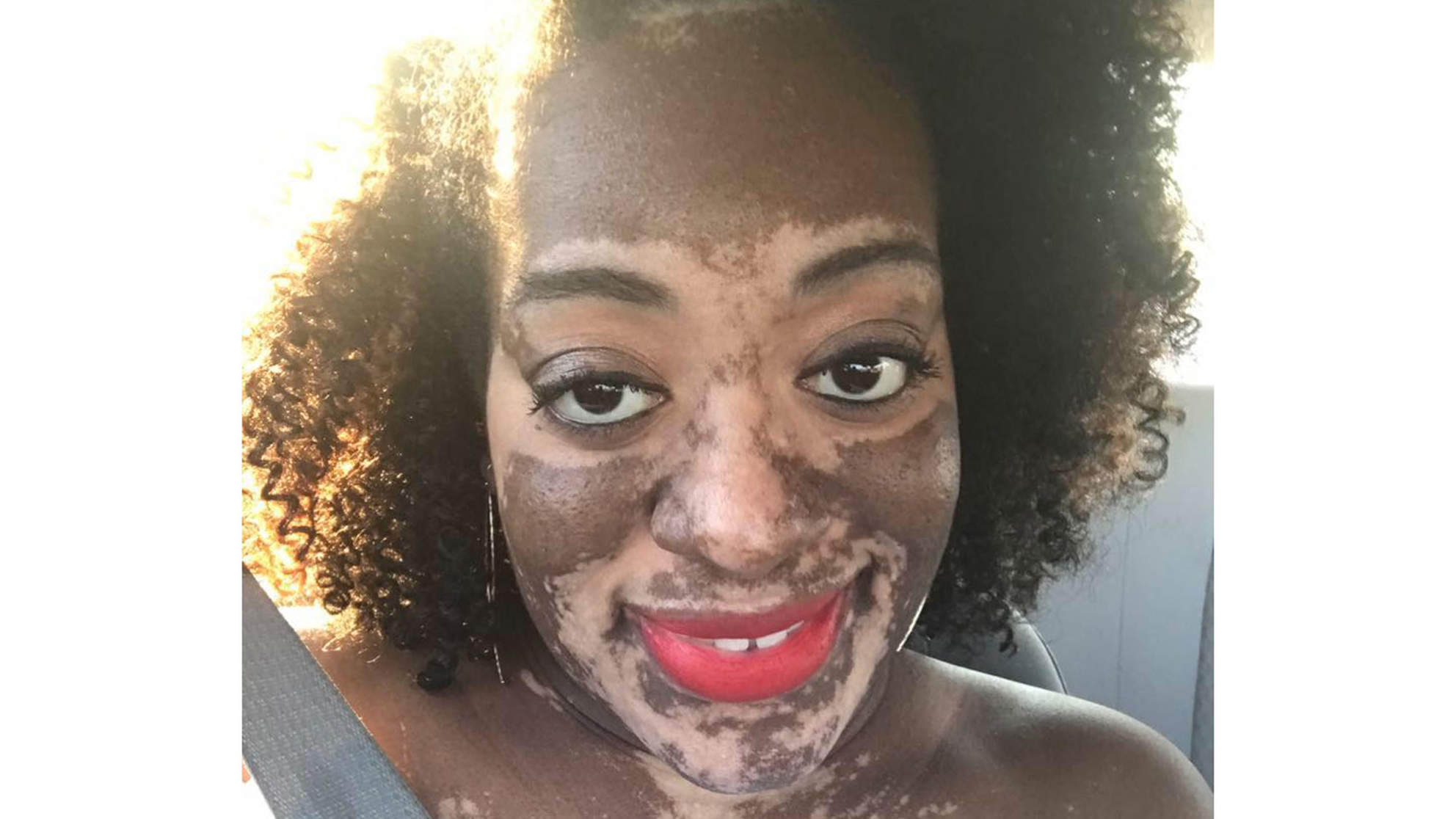 Bride Struggles with Vitiligo Before Her Wedding: 'It Has Made Me a Stronger Person'