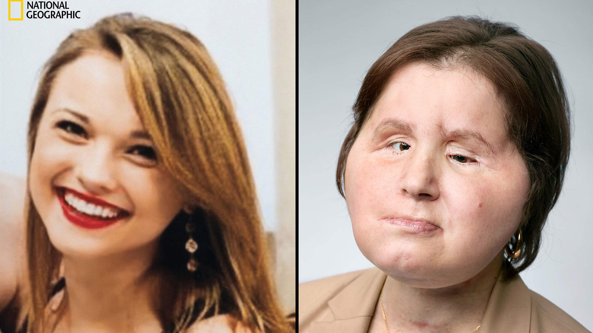 Suicide Attempt Survivor Shares Her Story One Year After Face Transplant Surgery