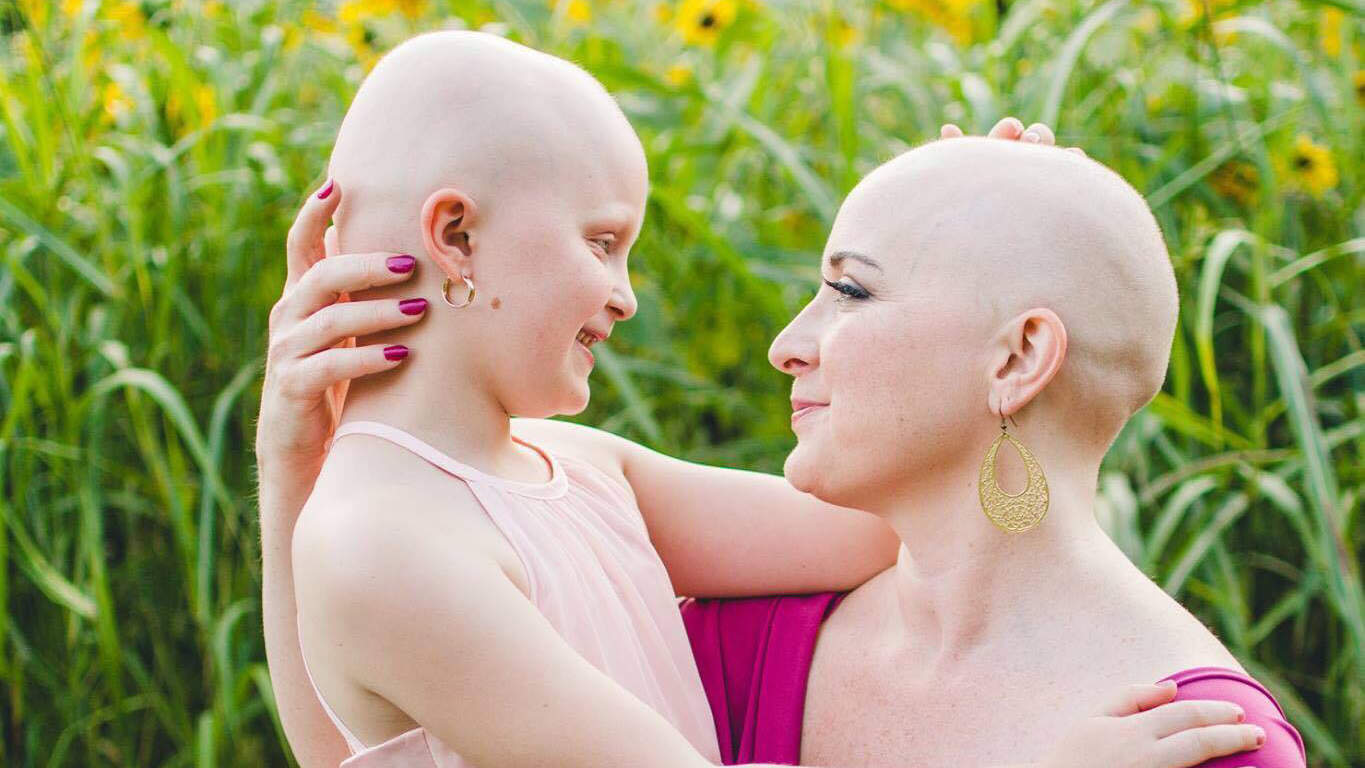 Mom with Breast Cancer and Daughter with Alopecia Pose Bald Together in Emotional Photo Shoot