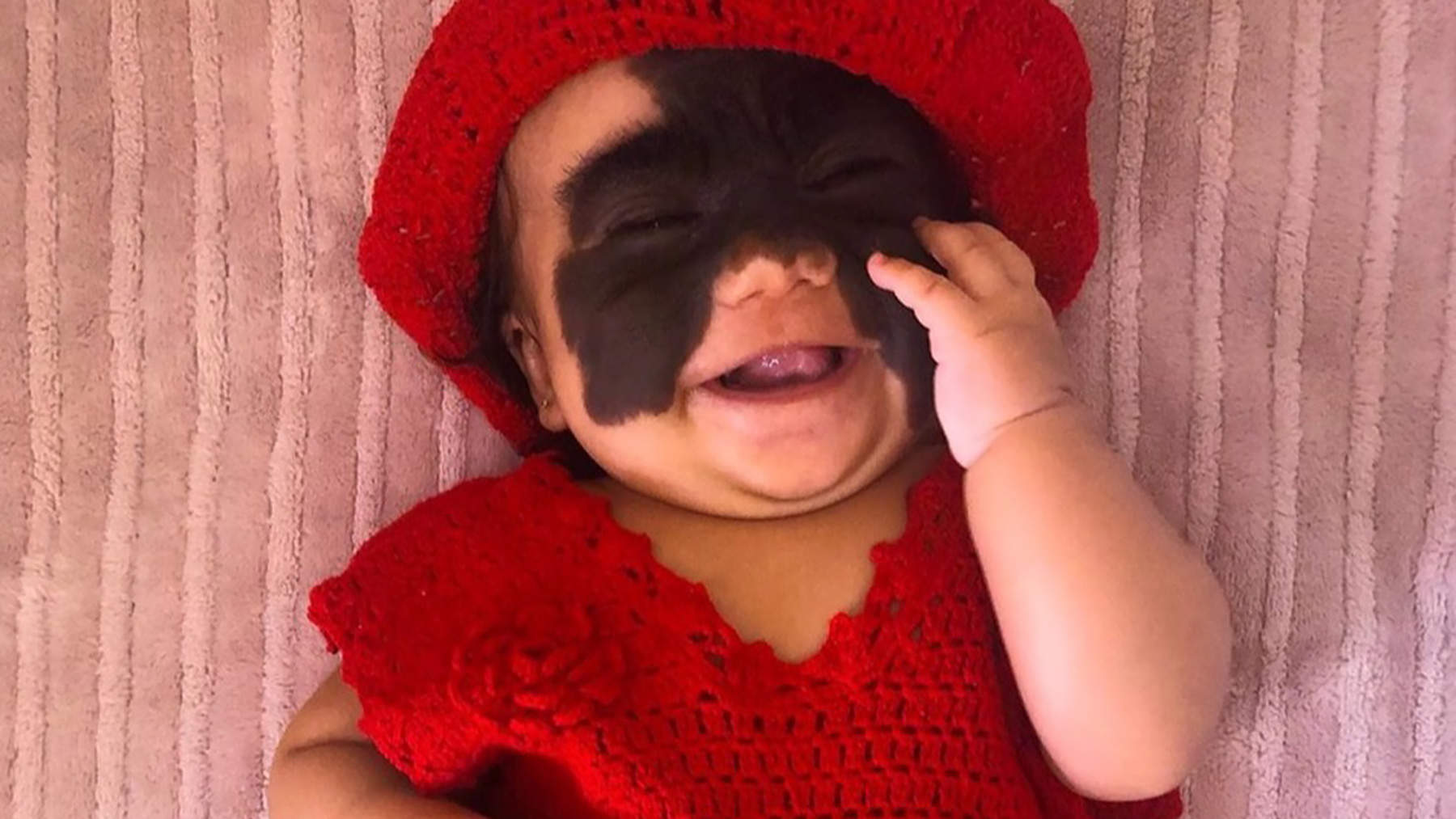 Baby Born with Rare Skin Condition Will Have Batman-Shaped Face Patch Removed