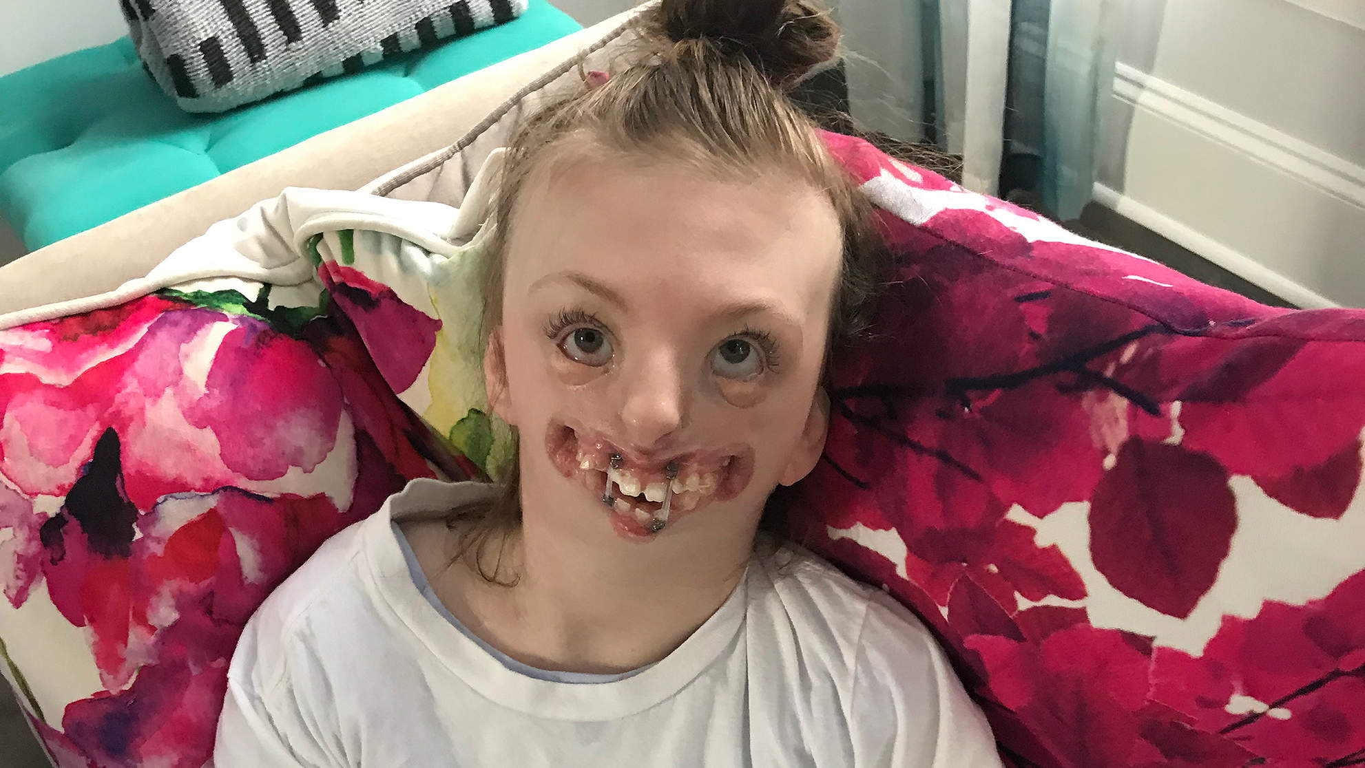 Parents of 10-Year-Old with Rare Condition Made Her Final Weeks Count: We Said 'Let's Have Fun'