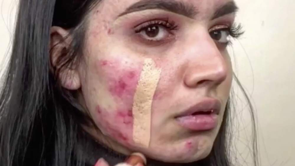 This Drugstore Foundation Stick Completely Covered Up a Beauty Vlogger's Acne in One Swipe
